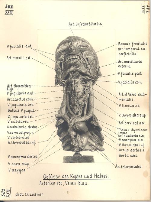 Anatomische Darstellung Der Halswirbelsäule Querschnitt ...